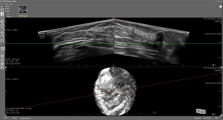 This is an ultrasound image of a female breast with an irregular solid mass that has been biopsied and confirmed to be cancerous.   The top image displays the breast in an axial plane and the lower image displays the breast in the coronal plane.  The solid masses irregular margin and hypoechoic posterior enhancement are visible in the axial image and the position of the structure is confirmed to be at approximately the 2 o'clock location.
