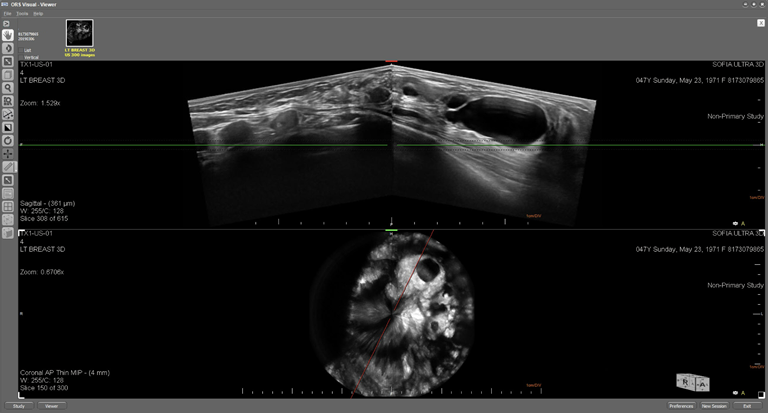 This is an ultrasound image of a female breast with multiple cysts varying in sizes. The top image displays the breast in an axial plane and the lower image displays the breast in the coronal plane.  The cystic structures are visible in both the axial and coronal planes and exhibit posterior enhancement as a result of the contained fluid.  The multiple cysts displayed in the  axial plane are between 1 o'clock and 7 o'clock