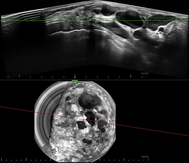 This is a 3D Automated Breast Ultrasound (ABUS)  image of a female heterogeneously dense breast (BI-RADS C)  that contains multiple cysts of varying sizes. Some have irregular margins.    The upper image is an axial slice of the breast shows the breast tissue and structures between 10 o'clock and 4 o'clock.  The lower image is a coronal slice of the breast that shows the location of the various cystic structure and there relative location to each other.