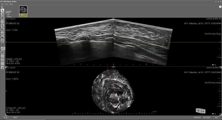 This is an ultrasound image of a female breast with normal dense breast tissue. The top image displays the breast in an axial plane and the lower image displays the breast in the coronal plane.  Breast tissue is composed of milk glands, milk ducts and supportive tissue (dense breast tissue), and fatty tissue (nondense breast tissue). When viewed on a mammogram, women with dense breasts have more dense tissue than fatty tissue.  On a mammogram, non-dense breast tissue appears dark and transparent. Dense breast tissue appears as a solid white area on a mammogram, which makes it difficult to see through.  Some of the features visible in the image are: skin, subcutaneous fat, cooper's ligaments, pectorals muscle, rib.  The SOFIA 3D Automated Breast ultrasound (ABUS) exam is capable of penetrating through Extremely Dense Breast Tissue (BI-RADS D) and   Heterogeneously Dense Breast Tissue (BI-RADS C) enabling visualization to the pectorals muscle.