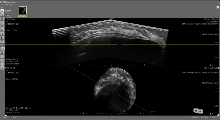 This is an ultrasound image of a female breast with a normal breast implant . The top image displays the breast in an axial plane and the lower image displays the breast in the coronal plane.  The implant has been placed under the breast tissue.  The margin surrounding the implant is consistent and does not exhibit properties associated with a rupture of the implant.    SOFIA's prone position enable the breast to be effectively imaged without artificial painful compression of the breast.  Thereby; reducing the risk associated with rupturing the implant during compression.   Some of the features visible in the image are: skin, subcutaneous fat, cooper's ligaments, pectorals, breast implant placement