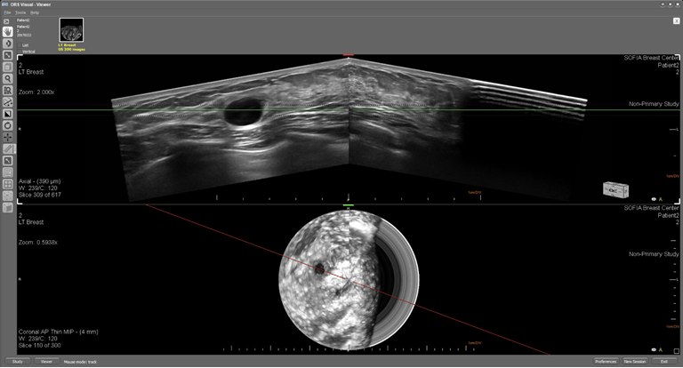 This is an ultrasound image of a female breast with a simple cyst. The top image displays the breast in an axial plane and the lower image displays the breast in the coronal plane.  In both the axial and coronal image display a circumscribed (well-defined) oval anechoic (black) mass with posterior enhancement as result of the fluid.    Multi planar reconstruction (MPR) enables the structure to viewed in various planes to confirm the margin is non-irregular an the structure is at approximately 10 o'clock.