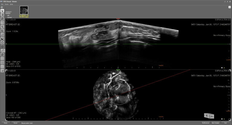 This is an ultrasound image of a female breast with a solid nodule that contains micro-calcifications.   The top image displays the breast in an axial plane and the lower image displays the breast in the coronal plane.  The accumulation of the echoic areas inside the solid mass are indicative of the accumulation of micro-calcifications and correspond with the mammography findings.