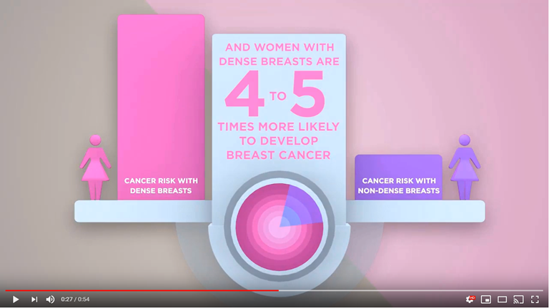 Women with dense breast are 4 to 5 times more likely to develop breast cancer.  Throughout her life a woman has 1 in 8 chance of developing breast cancer.  Mammograms are essential to detect breast cancer early so it can be treated. However, 40% of women have dense breasts making cancer more difficult to detect.  A large multi-center medical trail found that 55% more cases of cancer were detected in women with dense breast with the addition of ultrasound.  The SOFIA 3D breast ultrasound was developed for women with dense breast tissue.